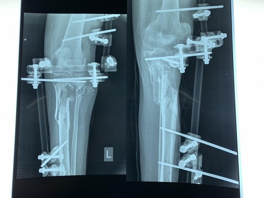 Une radiographie montre les dégâts causés par un tir sur la jambe de Yousri*, un patient pris en charge par MSF à l'hôpital Al-Awda de Gaza. Palestine. Janvier 2019. ©Jacob Burns/MSF