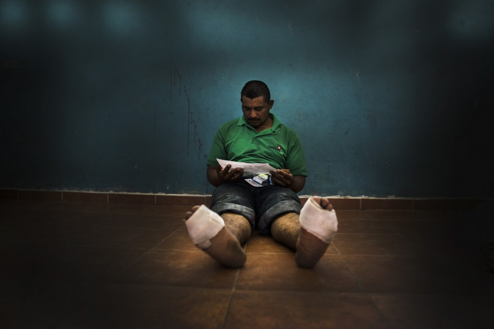 Many of the migrants arrive with sores and wounds on their feet after days on the road. © Juan Carlos Tomasi