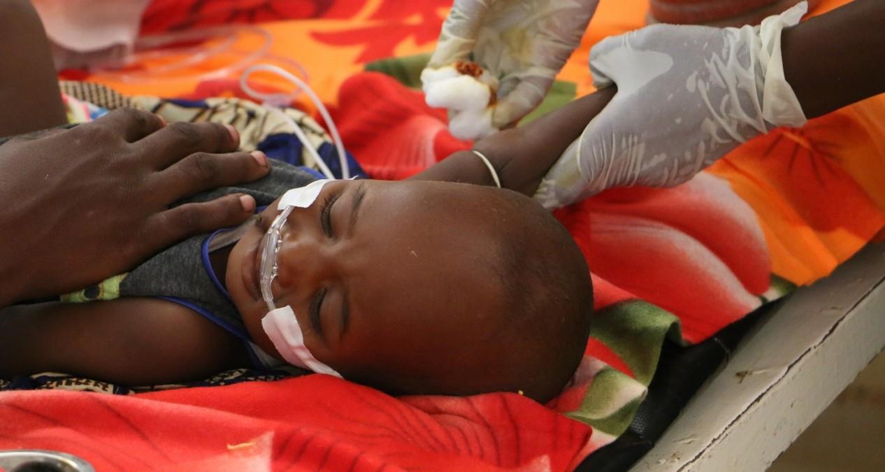 Un enfant atteint de malnutrition sévère est pris en charge dans le centre de nutrition thérapeutique d'un hôpital soutenu par MSF au Tchad, en 2018. © Candida Lobes/MSF