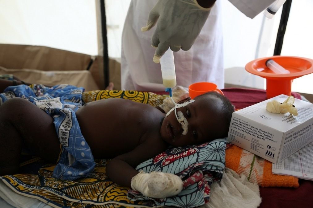Un enfant hospitalisé est nourri avec du lait thérapeutique par sonde nasogastrique. Tchad, août 2018. © Mohammad Ghannam/MSF