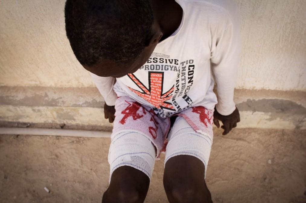 Un des survivants d'un naufrage dans un centre de détention, soigné par le personnel médical de MSF. Libye, septembre 2018. © Sara Creta/MSF