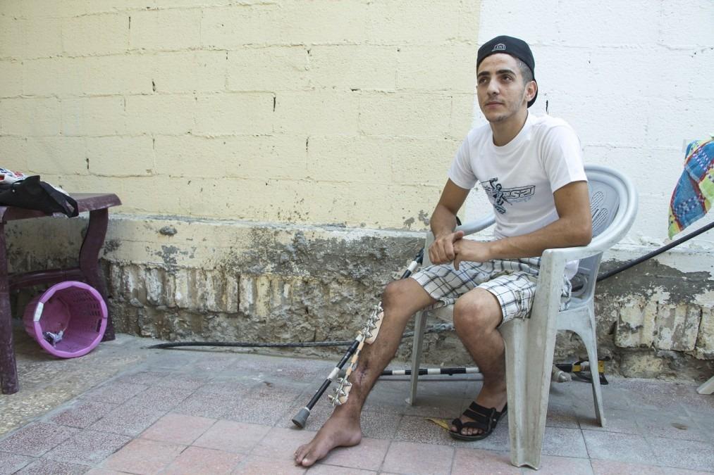 Eyad, 22 ans, a reçu une balle dans la jambe à Gaza le 14 mai, l'un des jours les plus meurtriers dont les équipes de MSF ont été témoins au cours des six mois de manifestations. Palestine. Septembre 2018. ©Alva Simpson White/MSF
