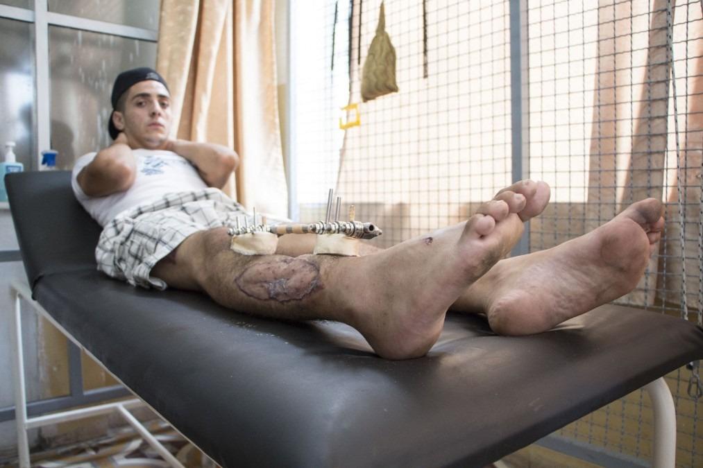 Eyad a besoin d'une greffe osseuse et d'une chirurgie reconstructrice, ce qui n'est pas possible actuellement dans la bande de Gaza. Palestine. Septembre 2018. ©Alva Simpson White/MSF