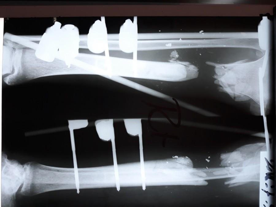 Radiographie de la jambe de Mohammed, blessé lors de « Grande marche du retour ». Septembre 2018. ©Alva Simpson White/MSF