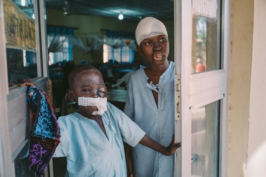 Umar, 8 ans, et Adamu,15 ans, dans le service post-opératoire de l'hôpital Sokoto, où ils ont bénéficié de soins reconstructifs après avoir été atteints du Noma. Nigeria, octobre 2018. © Claire Jeantet - Fabrice Caterini/INEDIZ