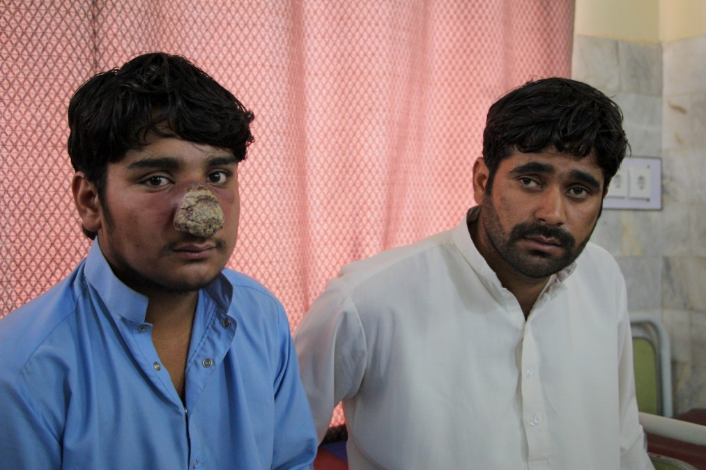 MSF Pakistan Cutaneous leishmaniasis