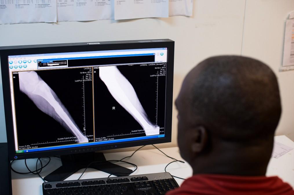 Des données sur les patients et des radiographies ont été collectées pour analyser les traitements et les résultats à l'issue des interventions chirurgicales. © Christophe Hebting/MSF