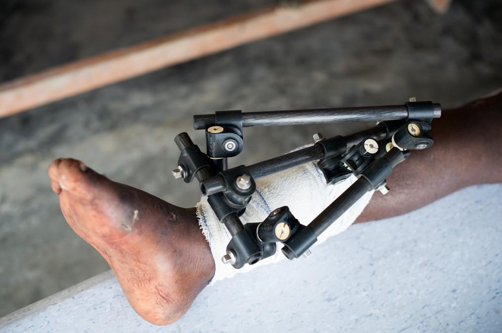 Pour poser un fixateur externe, il faut d'abord insérer des broches dans la peau, autour de la blessure, puis soutenir ces broches à l'aide d'un cadre externe rigide. © Christophe Hebting/MSF