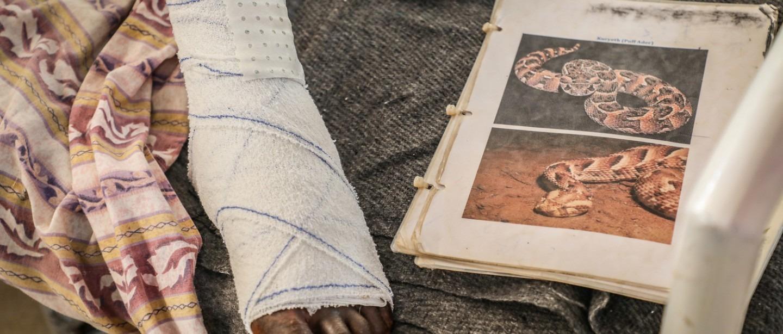 MSF South Sudan Snakebites